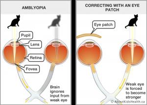 فوائد تغطية العين السليمة